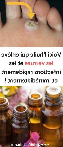 huile essentielle thym